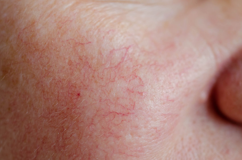 Spider Veins on Face | Info & Treatment