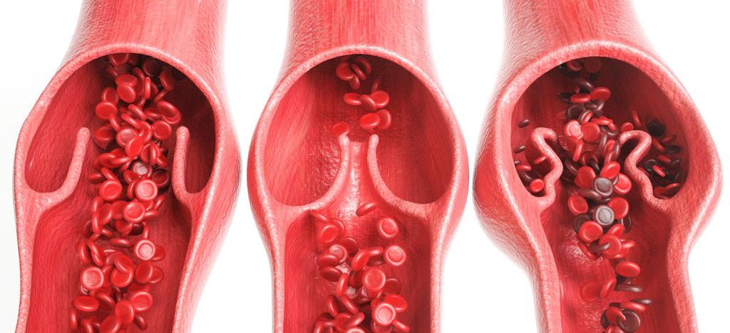 Varicose vein compared to healthy veins