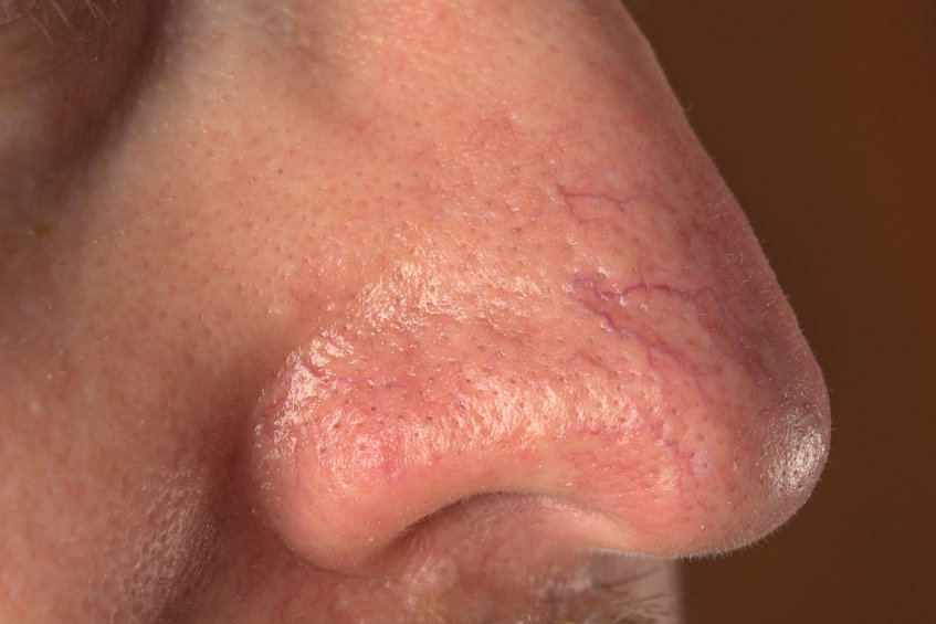 spider veins on face and nose - top vein clinic nyc