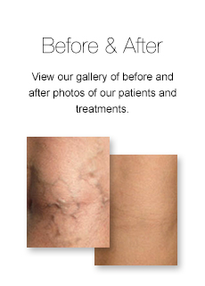 varicose-spider-vein-treatment-before-after-pictures