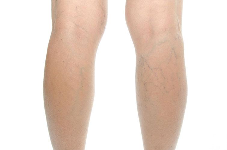 Varicose veins on legs treatment